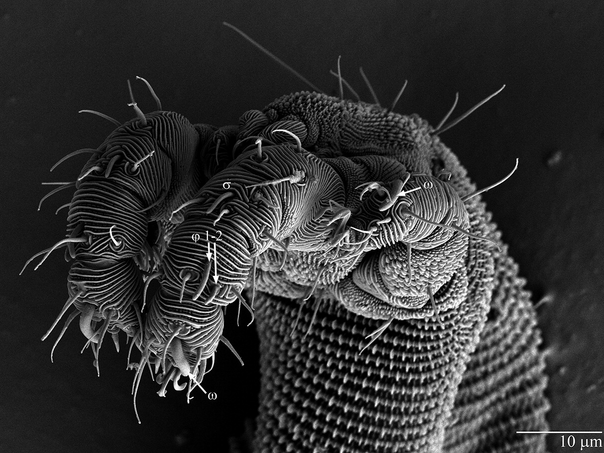 © US Department of Agriculture, Agricultural Research Service, Electron and Confocal Microscopy Unit (Beltsville, Maryland, États-Unis)